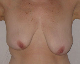 These are not my boobs, but I found a photo that was close.